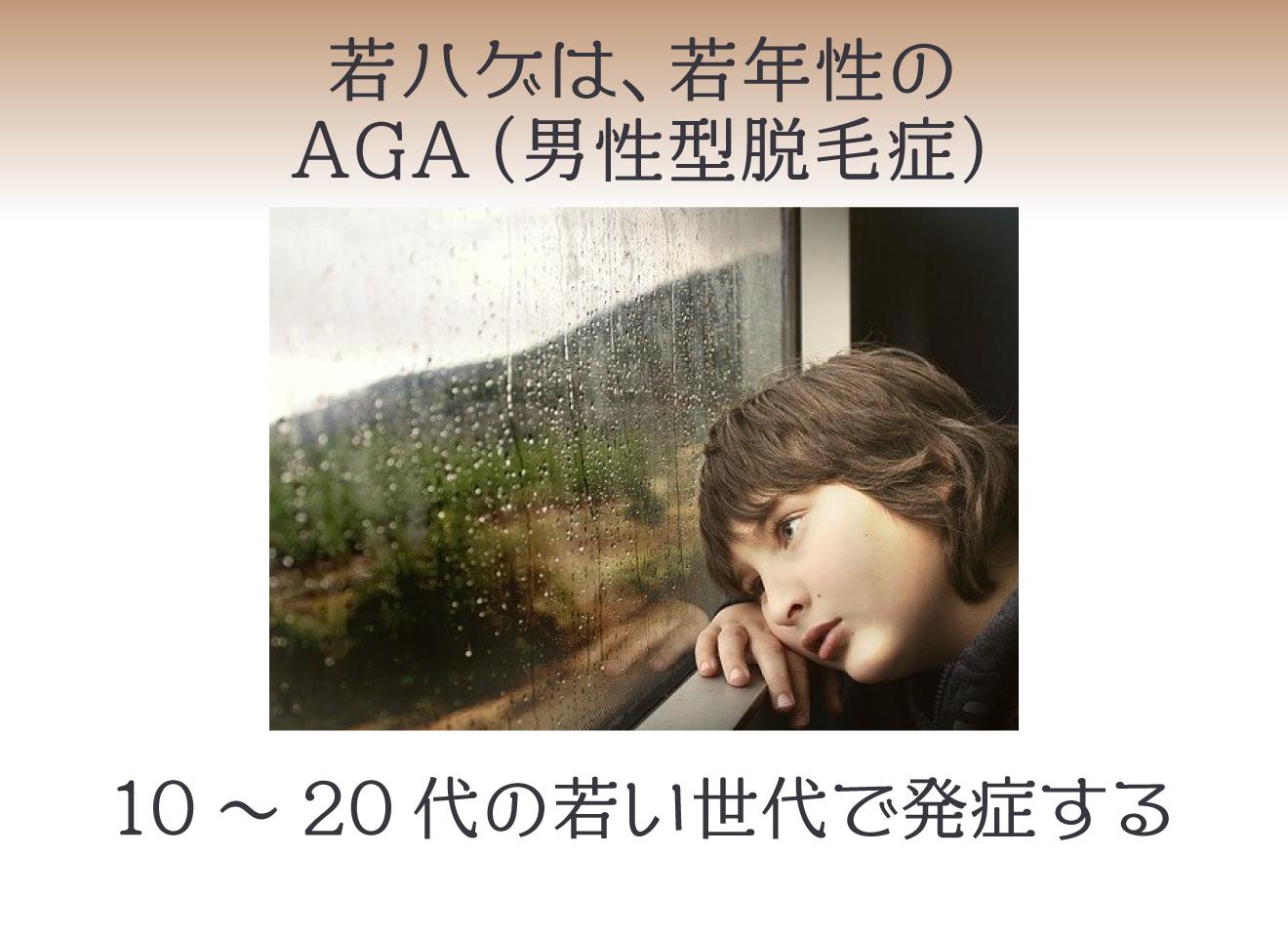 若ハゲは、若年性のAGA(男性型脱毛症)10~20代の若い世代で発症する