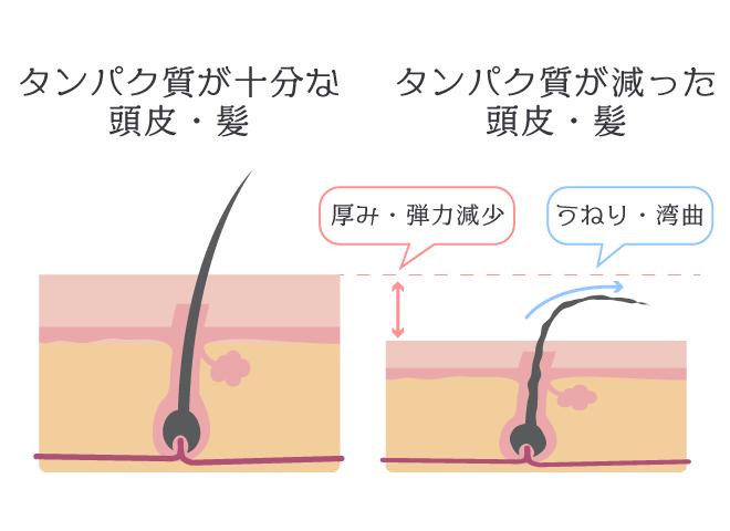 頭皮のタンパク質が減った髪の状態